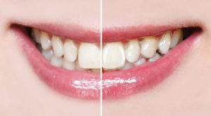 Durchsichtig und flexibel sitzt die Harmonieschiene auf Ihren Zähnen sanft wie eine Kontaktlinse. Foto: Orthos Fachlabor für Kieferorthopädie GmbH & Co. KG