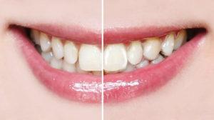 Harmonieschiene ermöglicht unsichtbare Zahnkorrektur